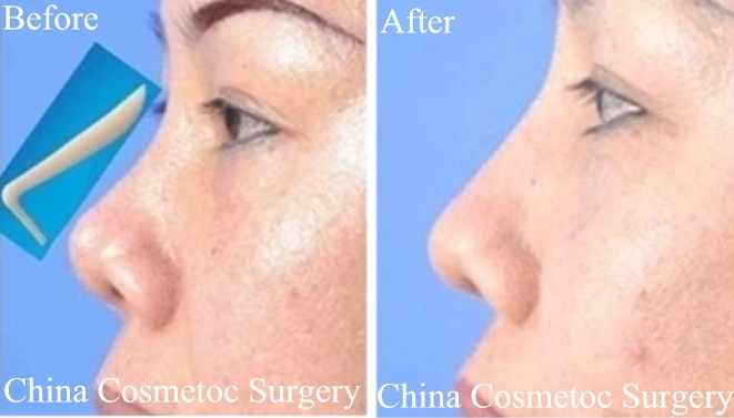 nose bridge before after