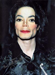 Michael Jackson rhinoplasty