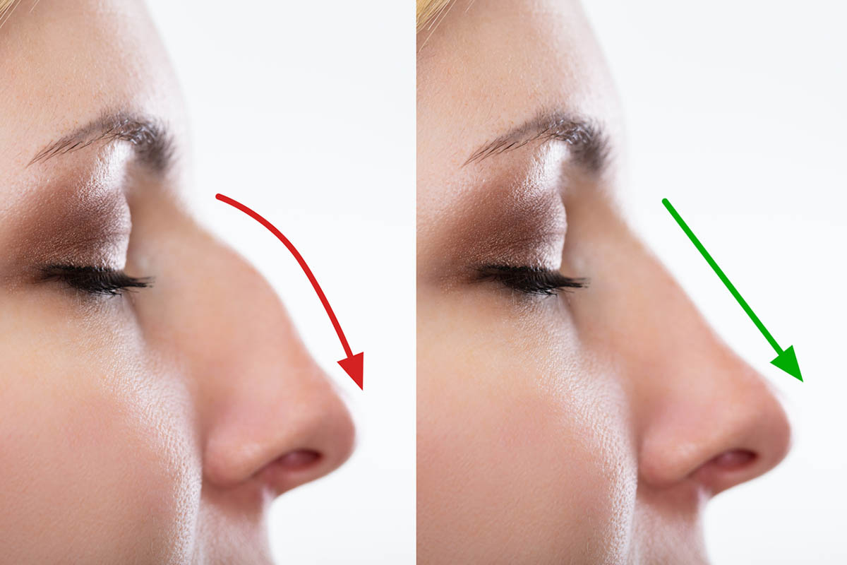 Woman's Nose Before And After Rhinoplasty